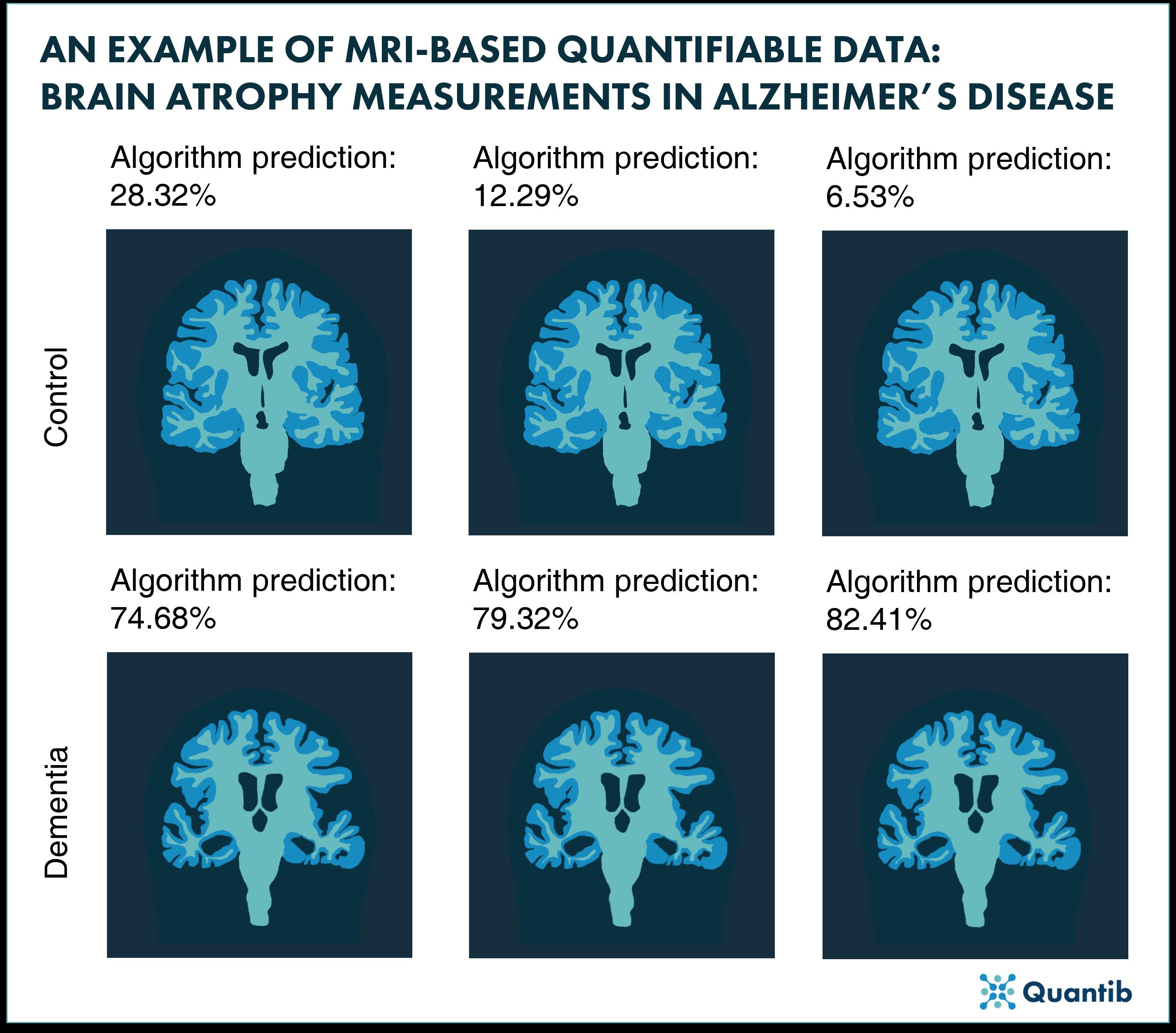 Brain atrophy measurements in Alzheimer's disease