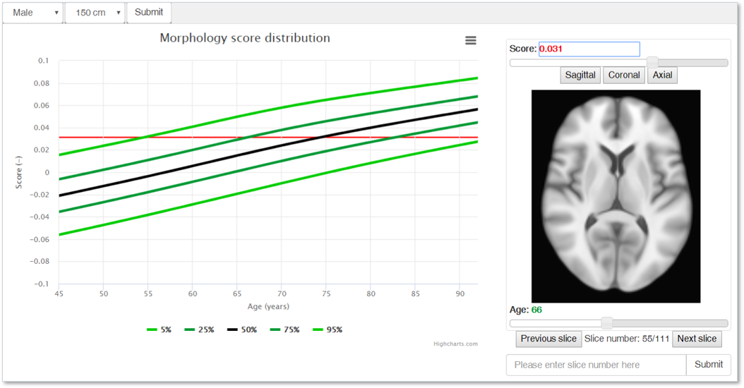 Aging brain - AI in radiology - Quantib
