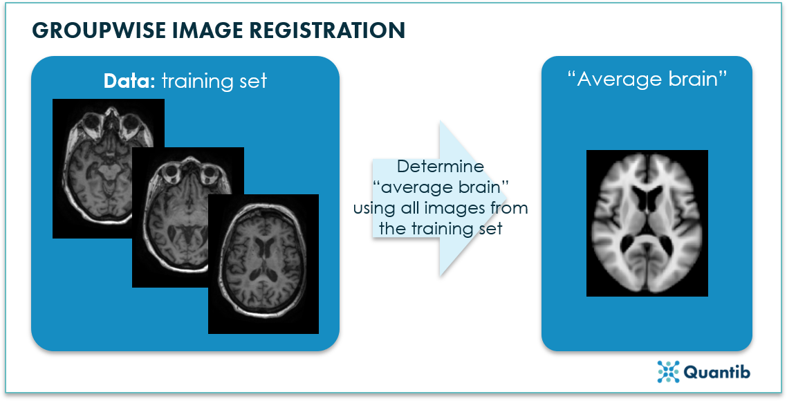 image registration - AI in radiology - Quantib