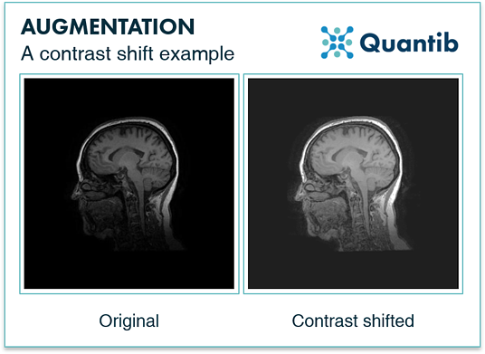 Contrast shift augmentation - AI in radiology - Quantib