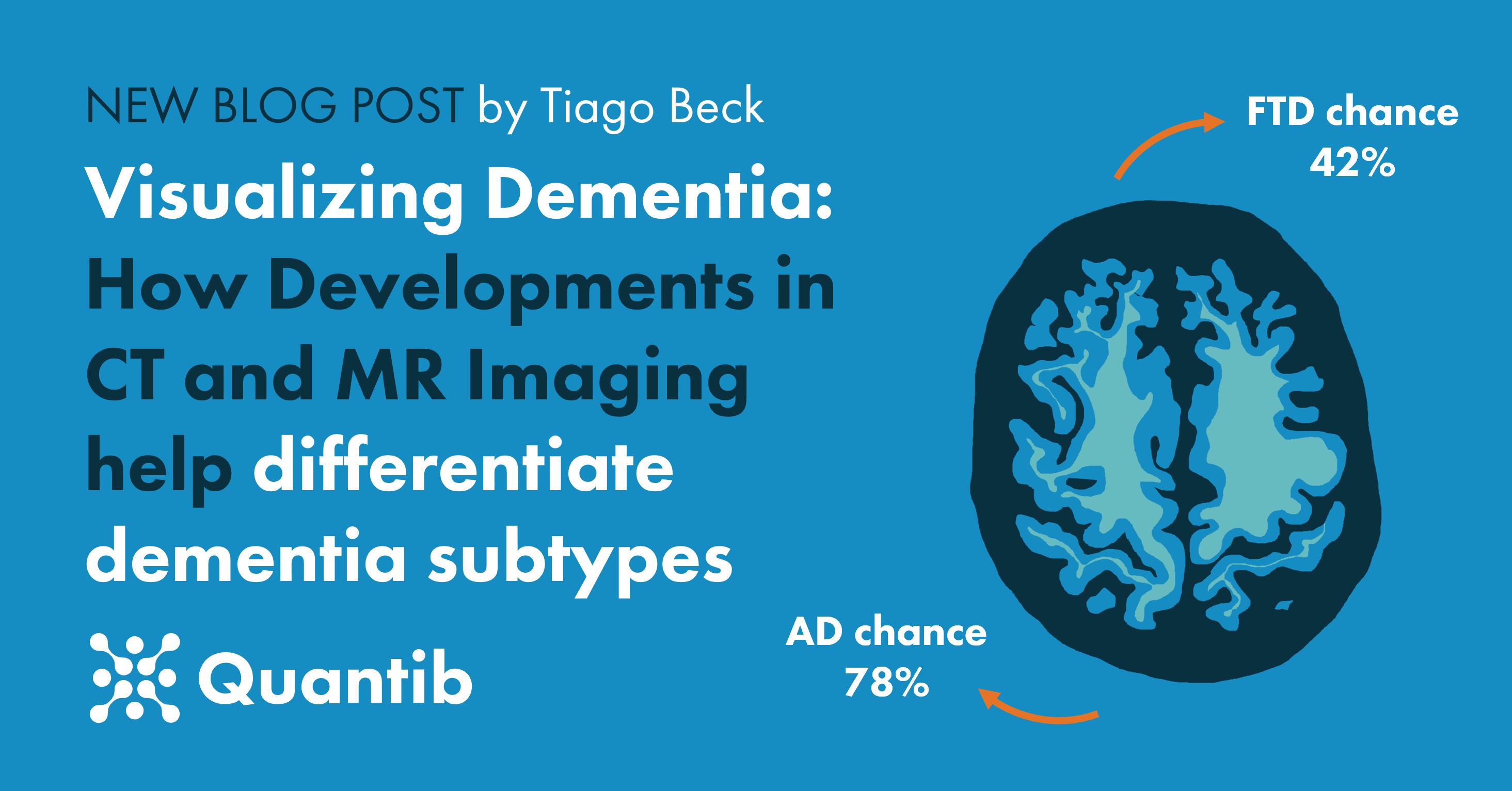 210716 - blog CT and MR for neuroimaging - social media post