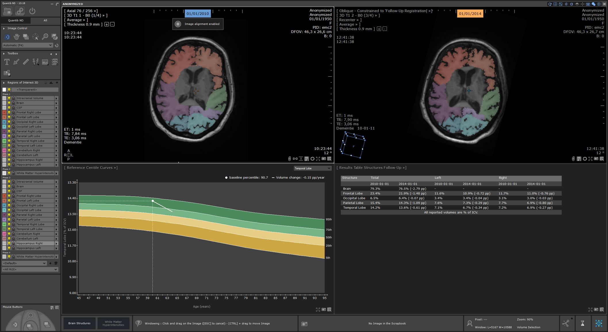 QND 1.5 lobes longitudinal