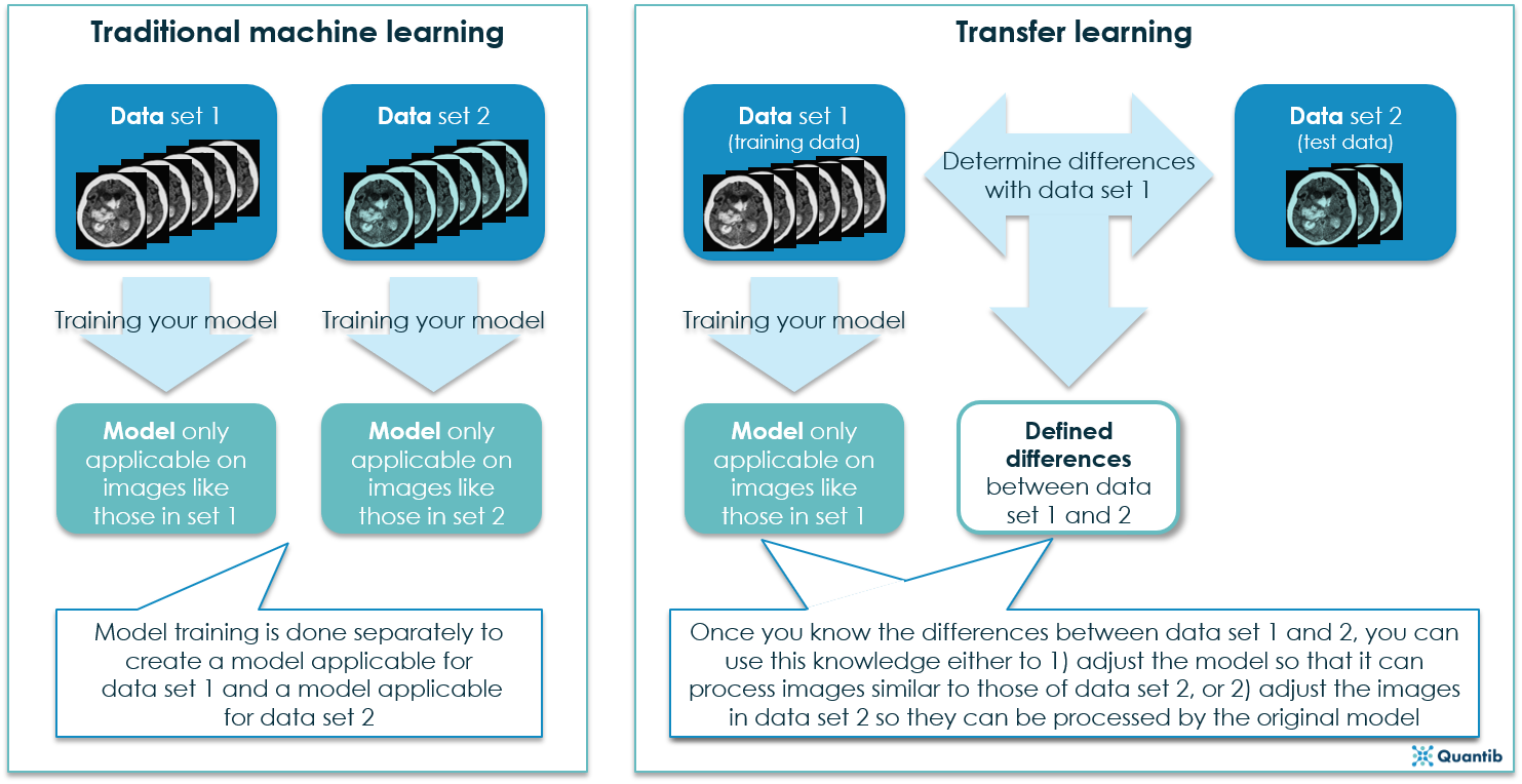 Transfer learningQuantib overview of transfer learning