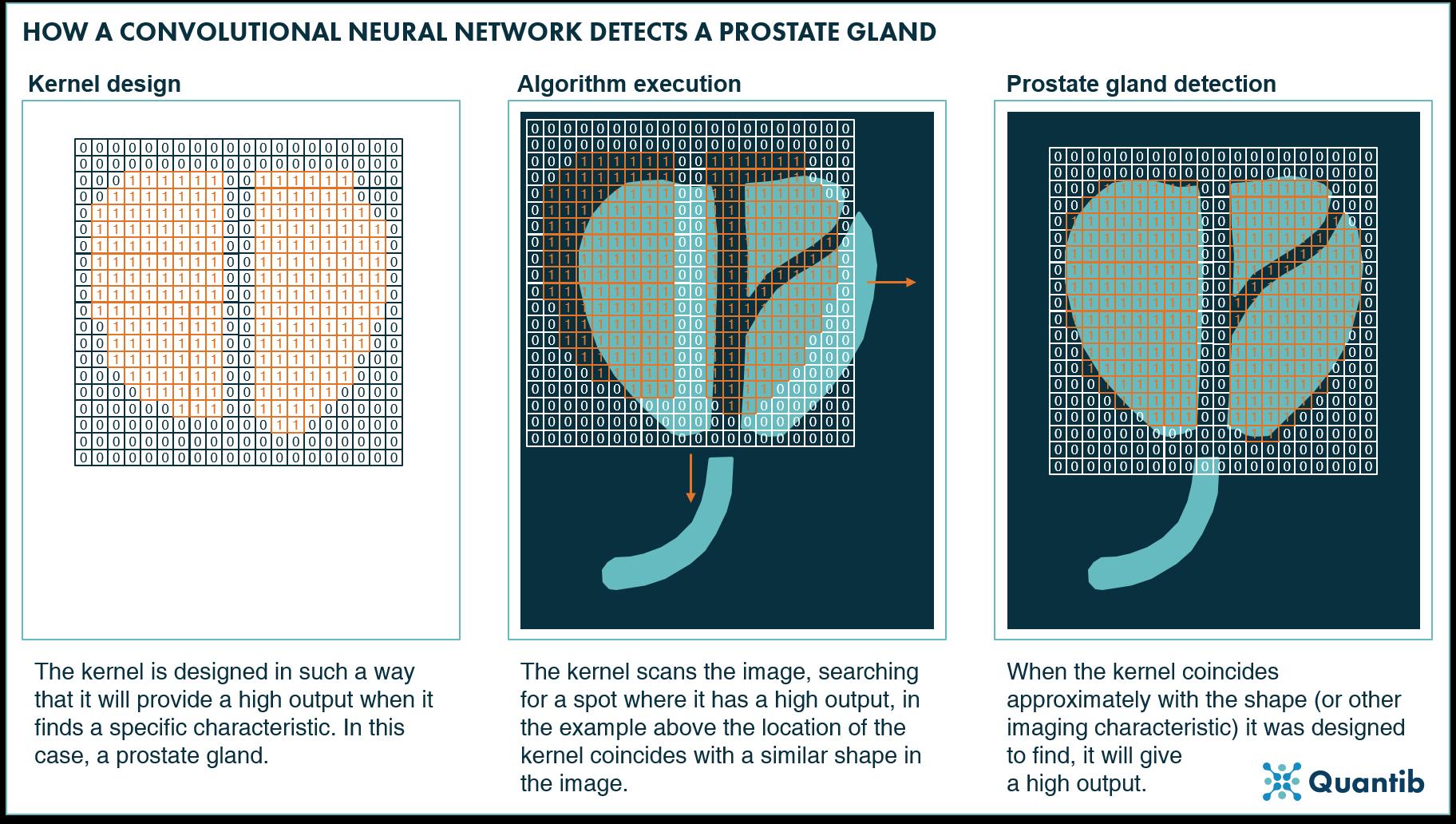 convolutional neural network prostate gland detection