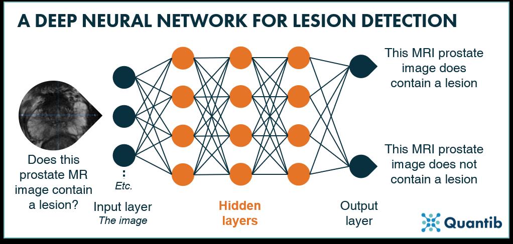 deep neural network lesion detection