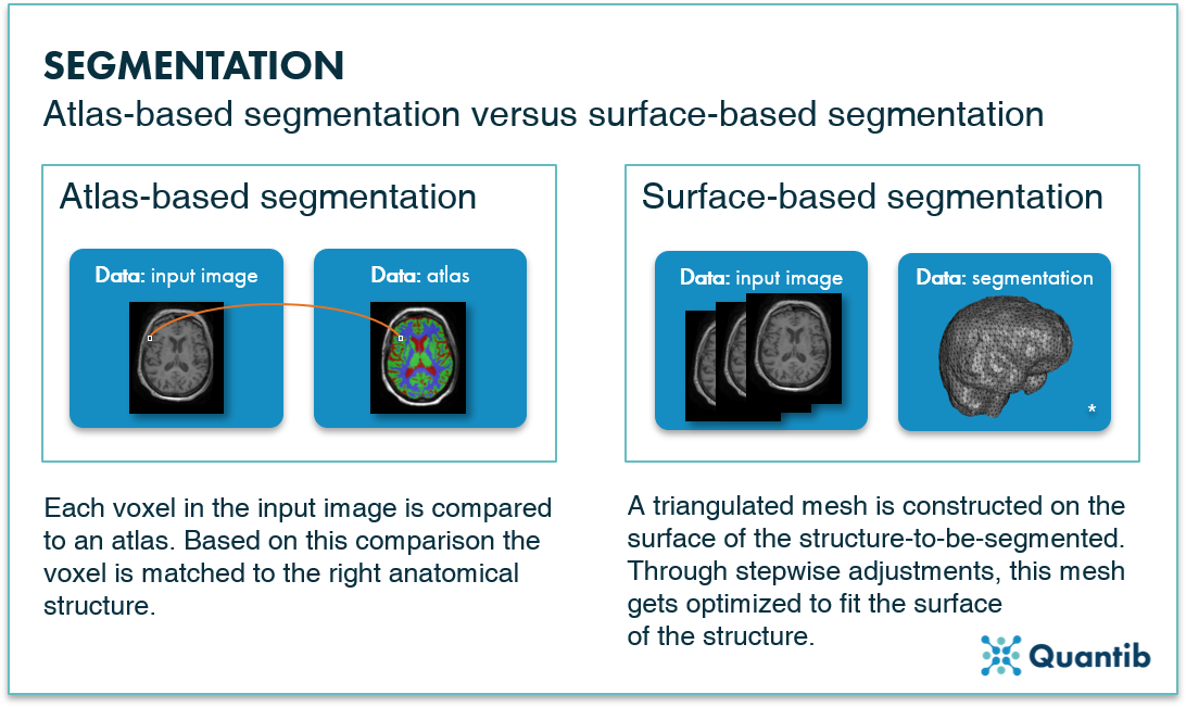 Artificial intelligence hippocampus segmentation - atlas-based vs surface-based- Quantib