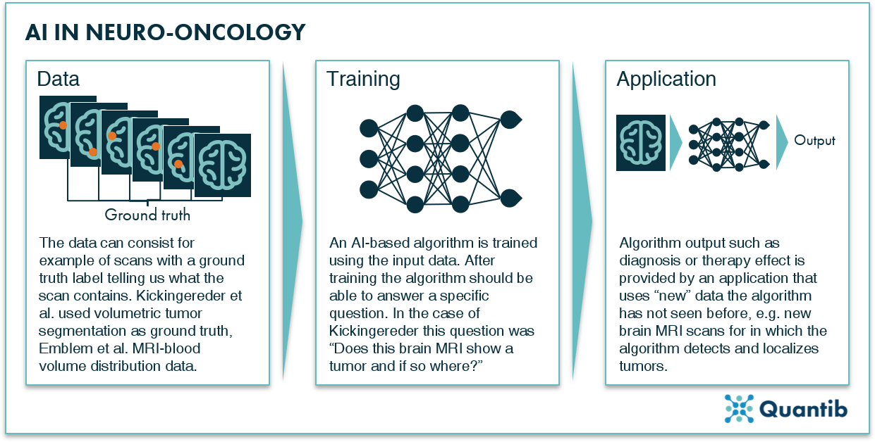 overview of how to train an algorithm for AI in neurology oncology problems
