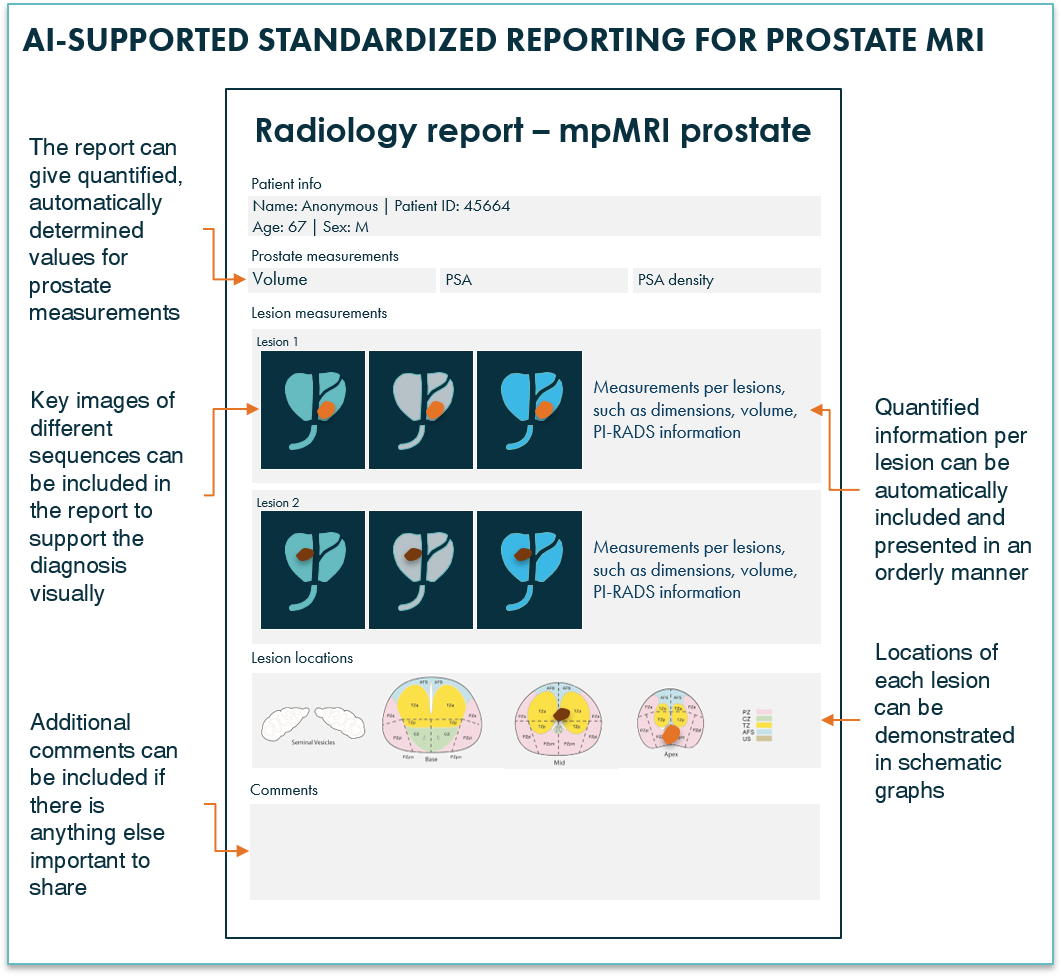 Prostate MRI report generated using AI prostate software