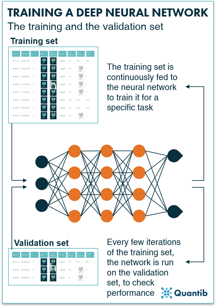 Schematic overview of how a training and validation set interact in training of a deep learning algorithm