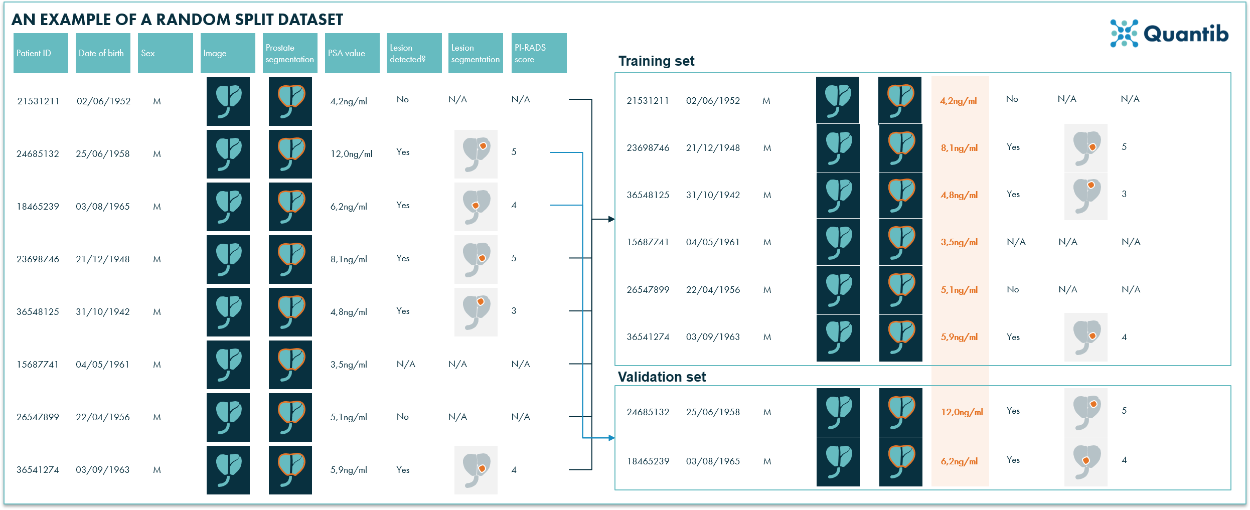 Schematic overview of how a medical imaging dataset is randomly split into a training and a validation set