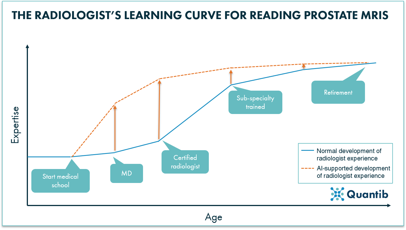 Radiologist's learning curve for reading prostate MRI