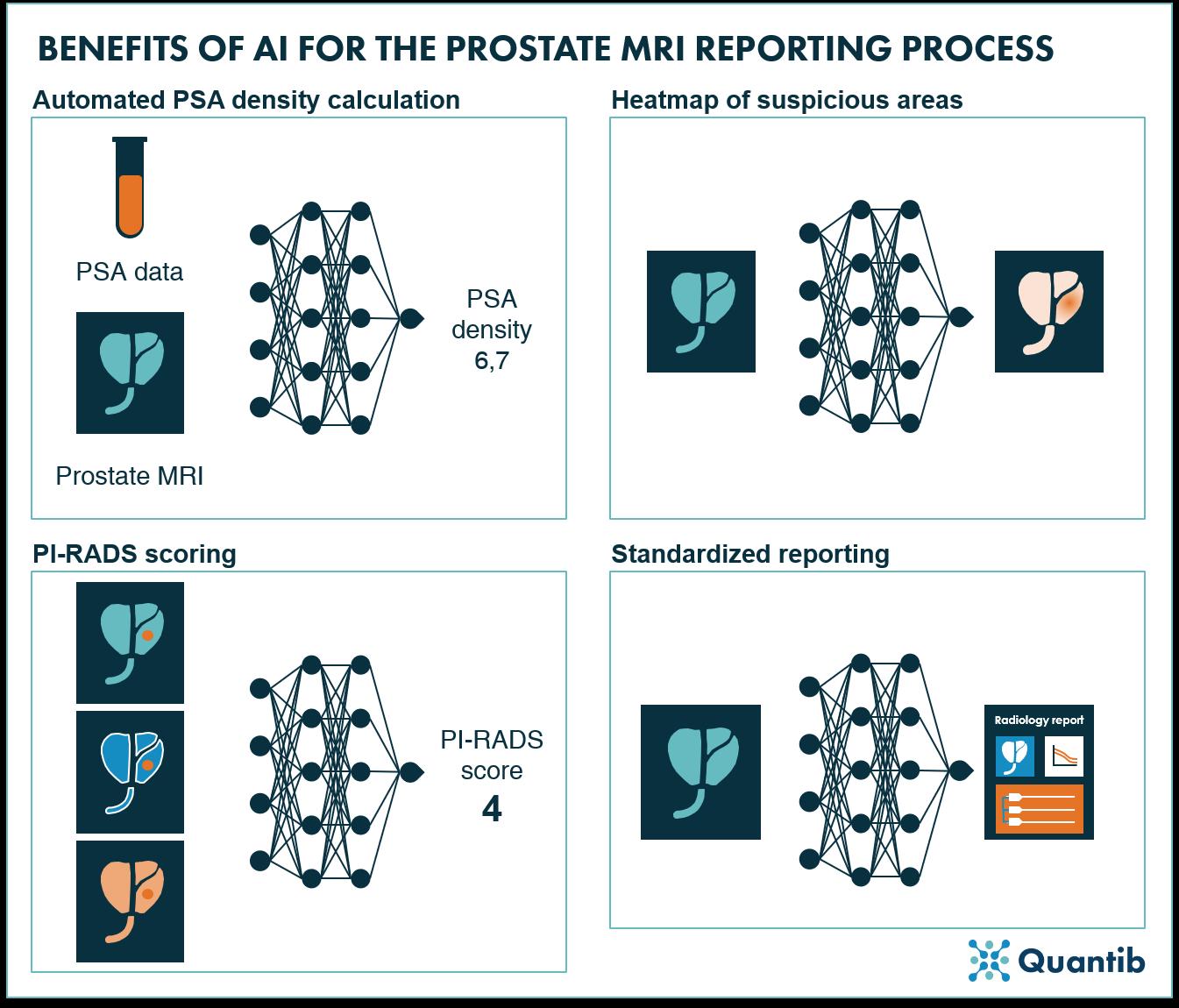 210603 -  Blog Why to adopt AI in prostate MRI - figure 2