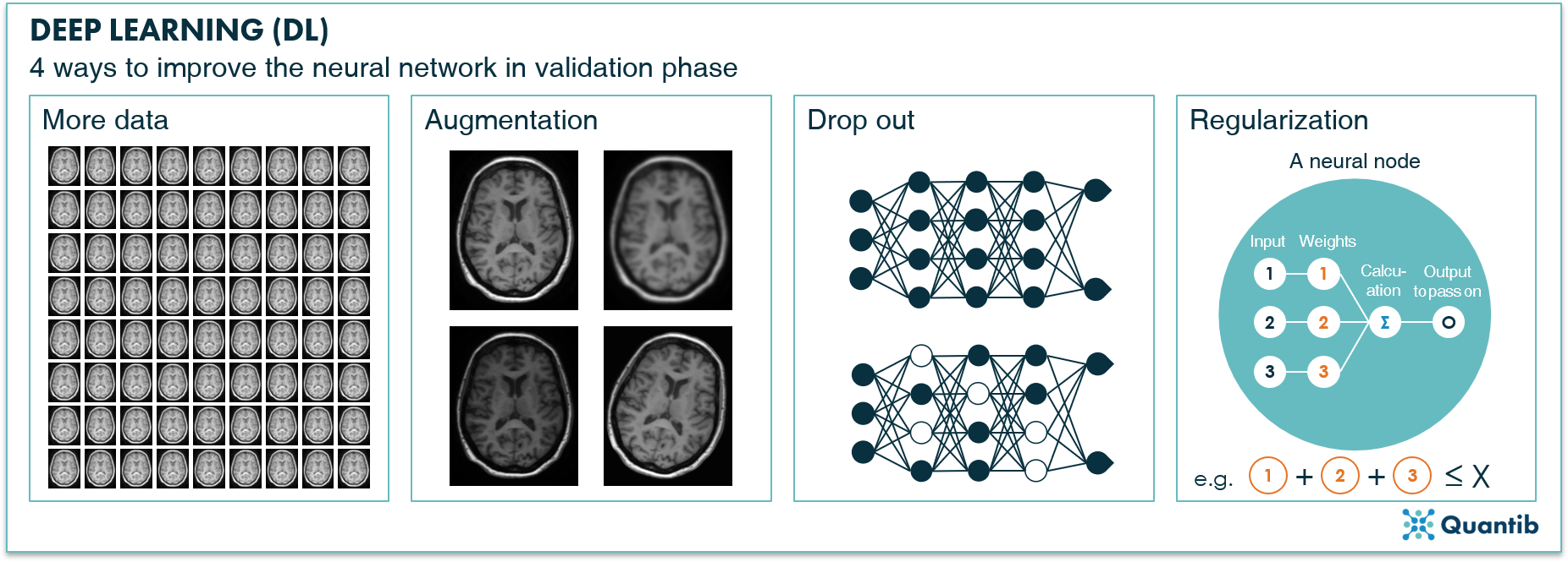 schematic figure illustrating deep learning in radiology explaining different techniques to improve a neural network in validation phase: adding data, augmentation, drop out, regularization