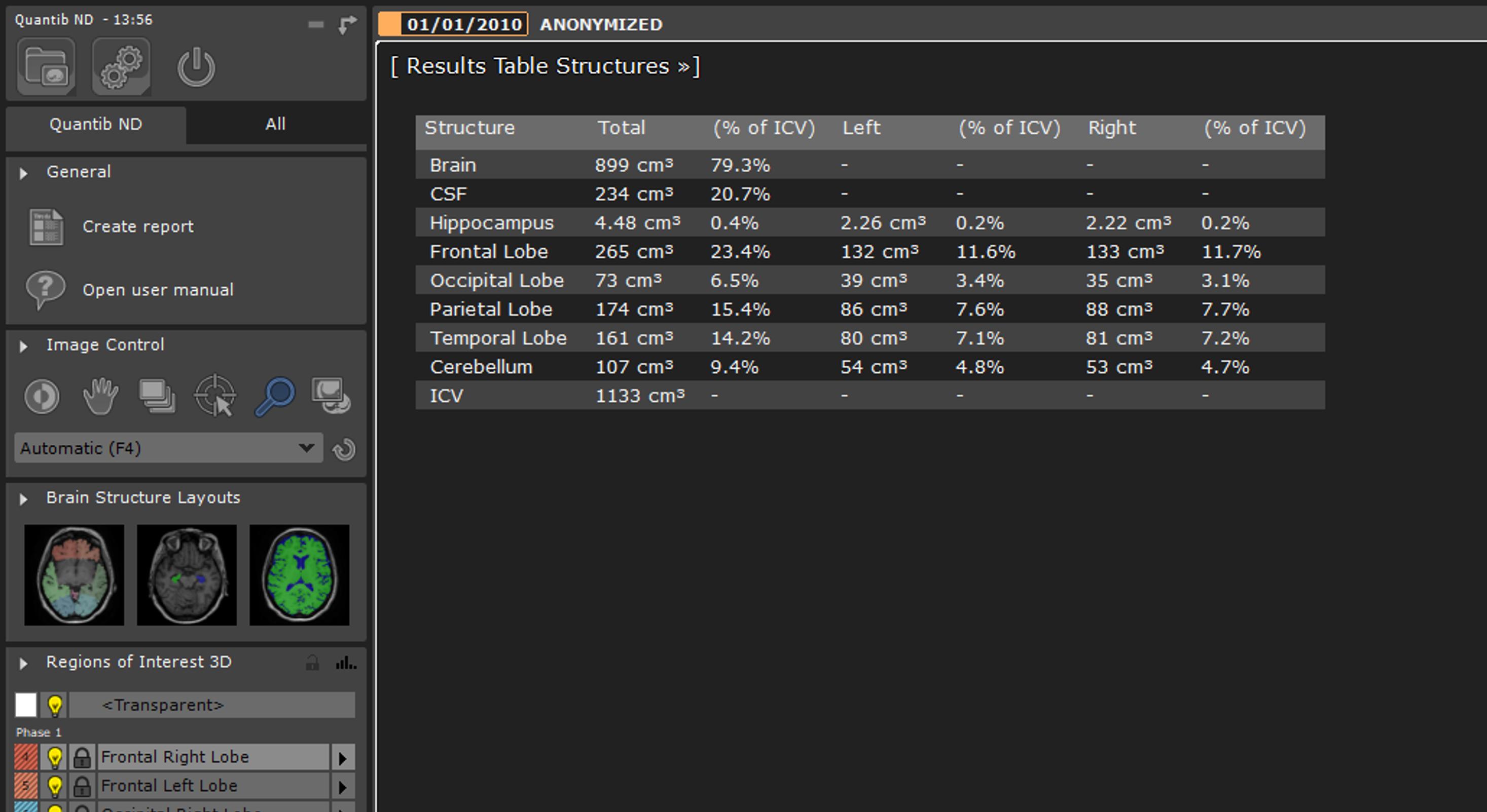 Quantib ND Results Table