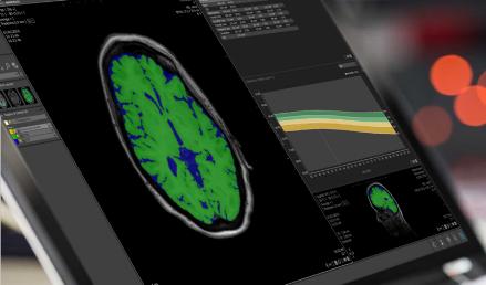 QND 1.5 Brain banner-856564-edited