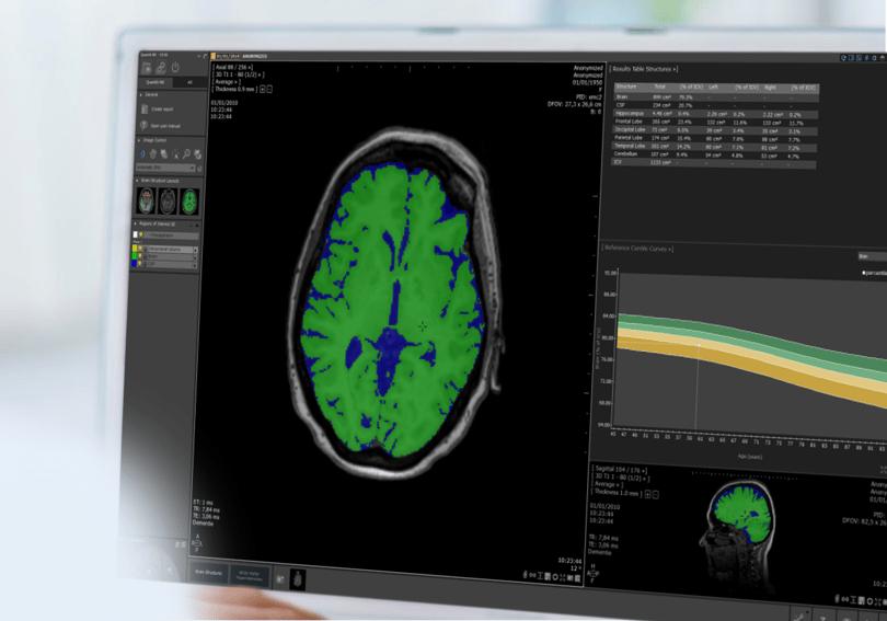 Quantib ND Plus brain segmentation for atrophy quantification and WMH detection