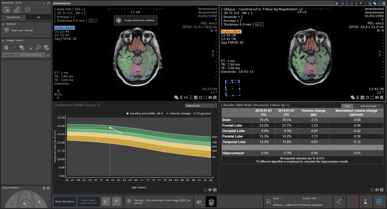 User interface of MRI brain atrophy monitoring software
