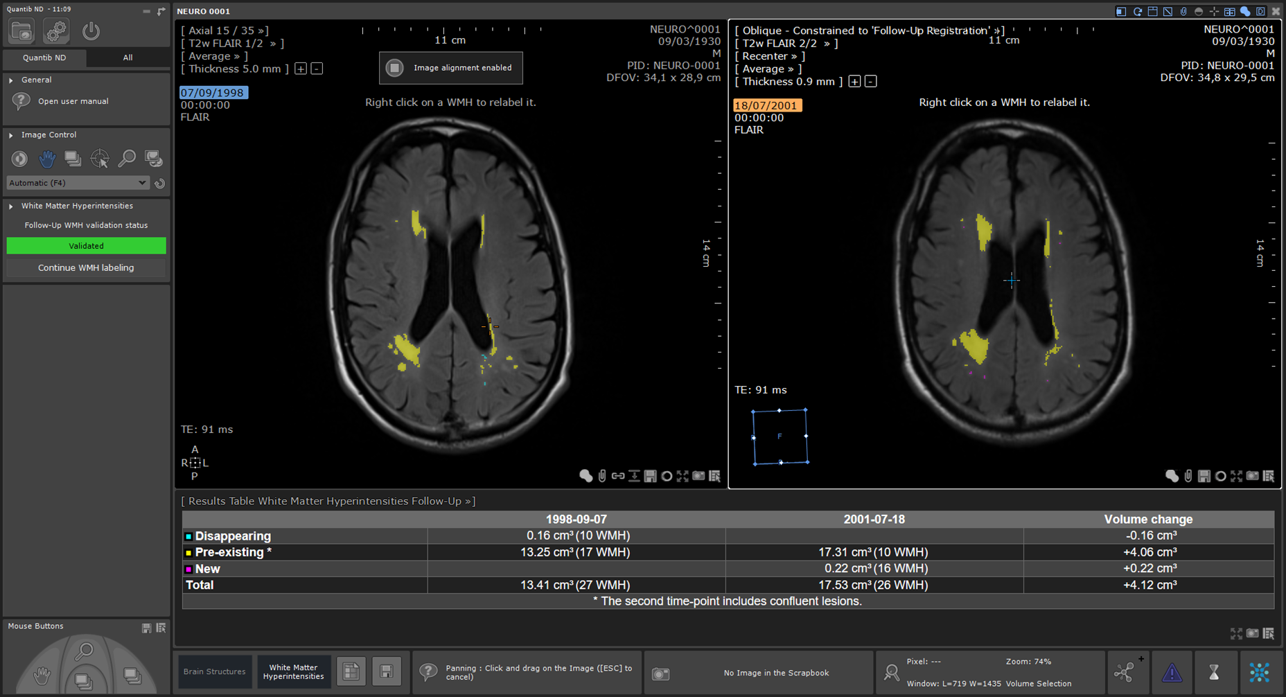 User interface of MRI white matter hyperintensity monitoring software
