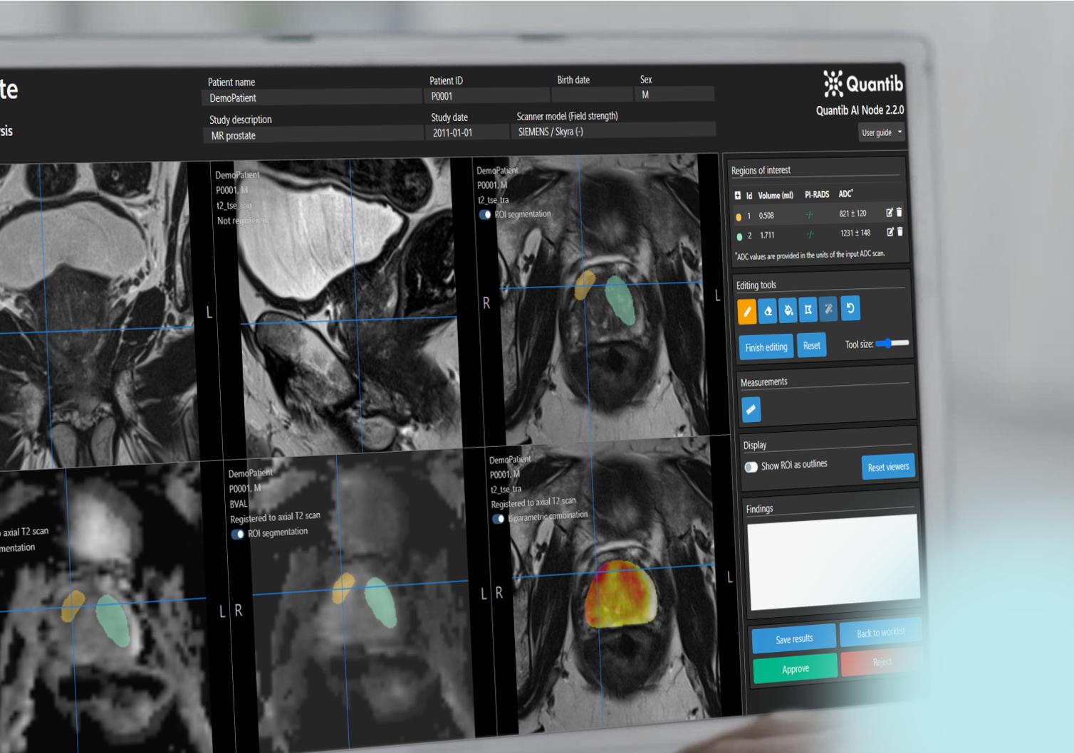 prostate radiology software Quantib Prostate user interface on desktop monitor showing ROI segmentation