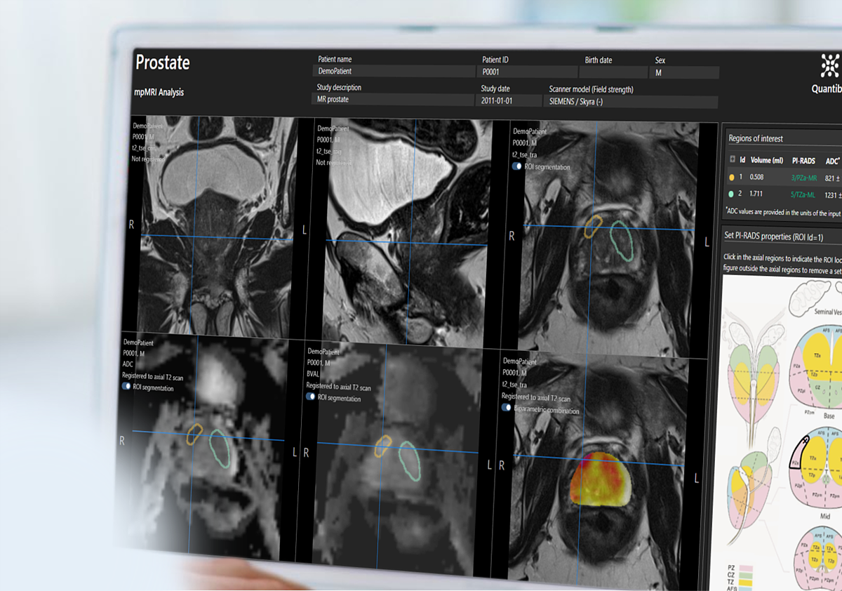 prostate radiology software Quantib Prostate user interface on desktop monitor showing PIRADS scoring