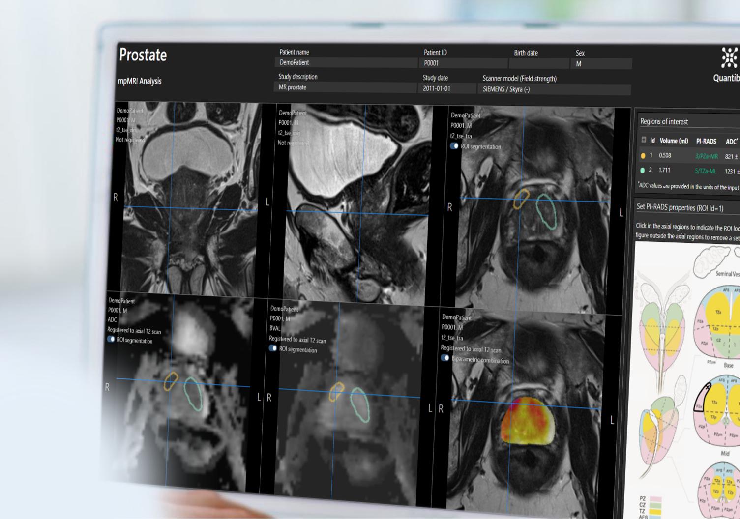 prostate radiology software Quantib Prostate user interface on desktop monitor showing PIRADS scoring