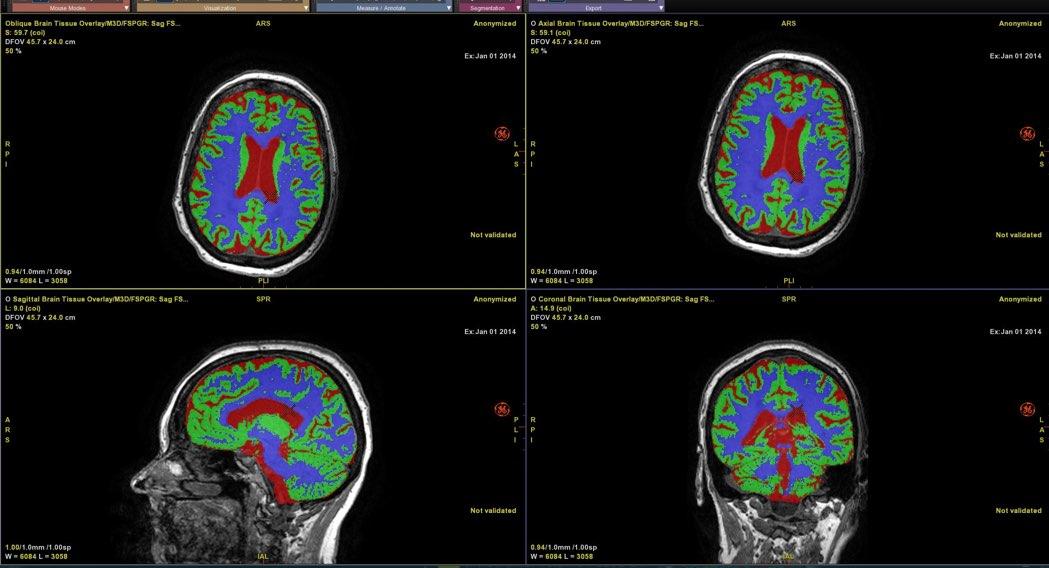 Brain Quantification