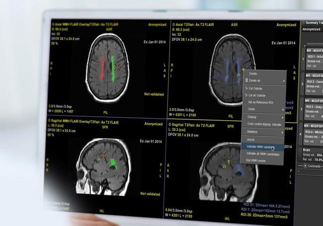 quantib-brain-feature