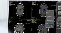 quantib-brain-resource