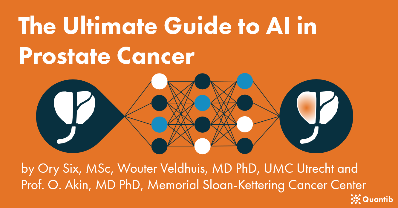 AI in prostate cancer - homepage image-1