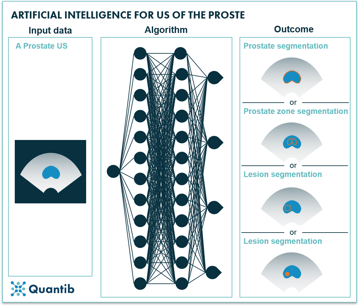 AI in prostate oncology - figure 14
