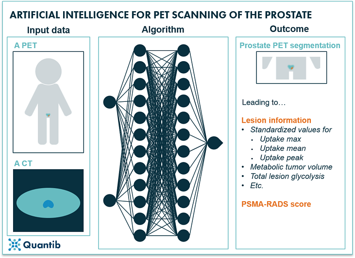 AI in prostate oncology - figure 15
