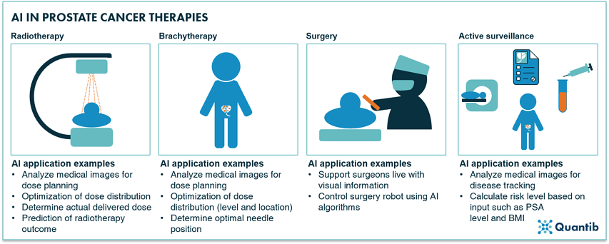 AI applied to prostate cancer therapies