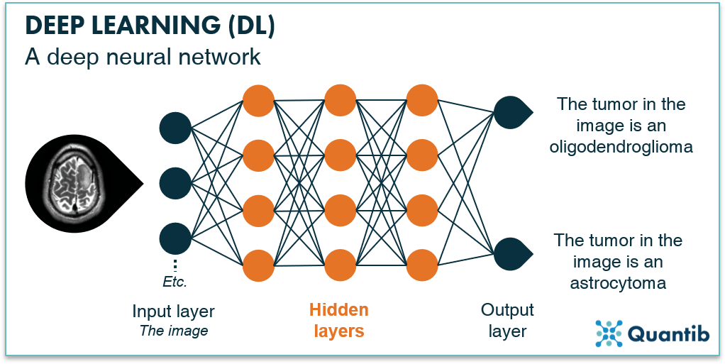 Infographic explaning a deep neural network using a brain MRI as an example