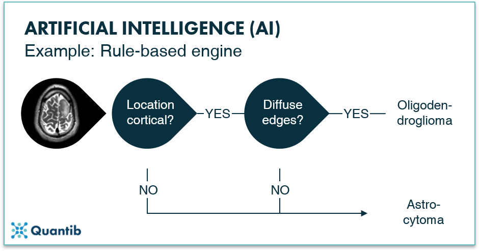 Infographic explaning the artificial intelligence algorithm of a rule-based engine using a brain MRI