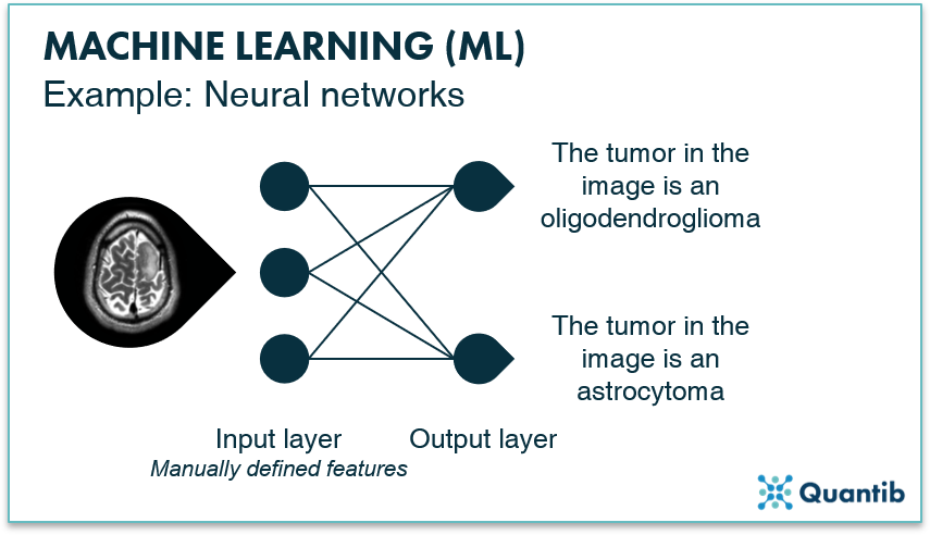 Infographic explaning a machine learning neural network using a brain MRI as an example