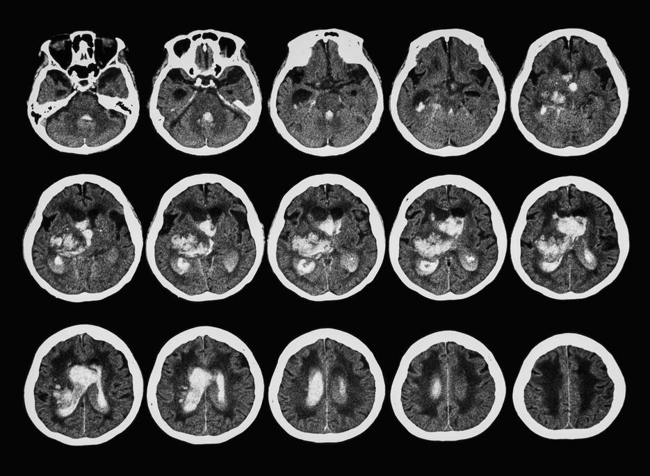overview of brain CTA scans consisting of multiple slices